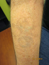 Photo: Pre 15th Laser Tattoo Removal Treatment at Las Vegas Dermatology using the RevLite SI Tattoo Removal laser by Cynosure/Con Bio. Almost completely removed without any signs of scarring!