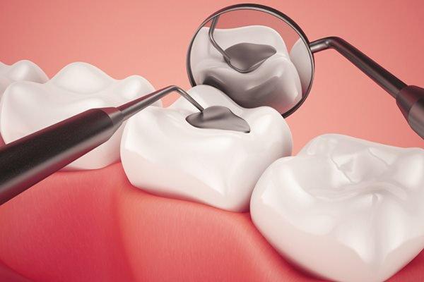 Trám răng cửa thưa được thực hiện như nào?