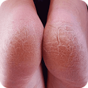 Get Rid of Cracked Heels icon