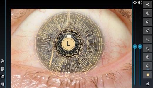 Eye Diagnosis screenshot 7