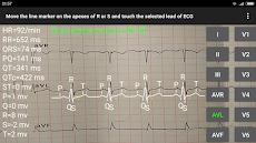 ECG Reader 2のおすすめ画像1