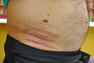 Photo: Salar Trek, Friction damage on the hips due to the heavy backpack Bolivia, 2013