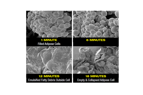 Fat Cells during treatment