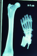 Photo: Radiography (x-rays) a standard part of forensic anthropology.  The short neck of the femur and subtle differences in digit features clearly distinguish these specimens from human material.