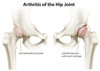 Helpful Strategies for Hip Osteoarthritis
