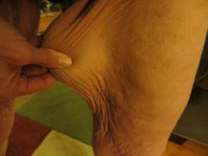 Photo: Extra leg skin