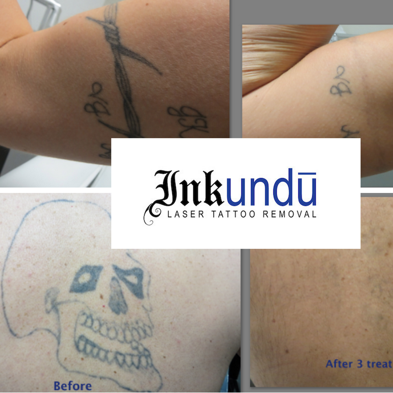 Inkundū Laser Tattoo Removal Clinic - Tattoo Removal Service in ...