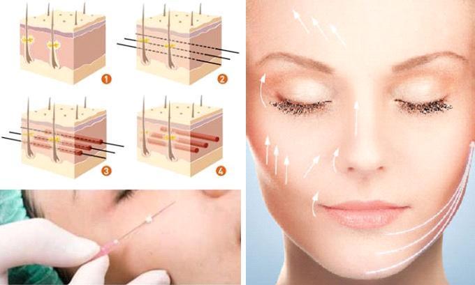 Hướng dẫn chăm sóc khi vừa thực hiện căng da mặt bằng chỉ - Ảnh 2