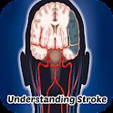 Stroke Symptoms icon
