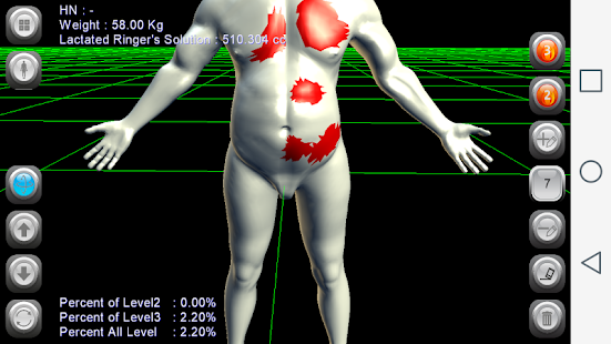 3D Burn Resuscitation- screenshot thumbnail