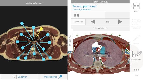 Atlas de anatomía humana 2019: el cuerpo en 3D - Apps en Google Play