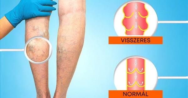 terhesség visszér lábfájdalom