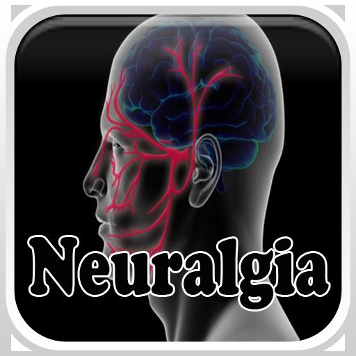 Neuralgia Disease