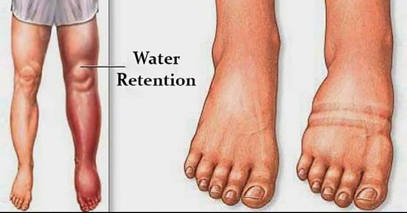 How to Lose Water Weight Naturally: 5 Ways to Reduce Fluid Retention