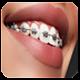 braces photo editor 2018 (app)