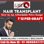 Hair Transplant in Bengaluru