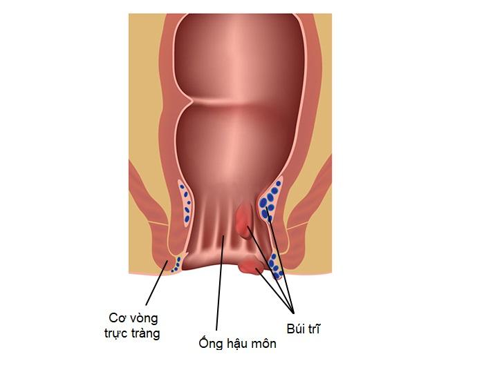 Bệnh trĩ kéo dài gây có thể gây ra nhiều biến chứng nguy hiểm