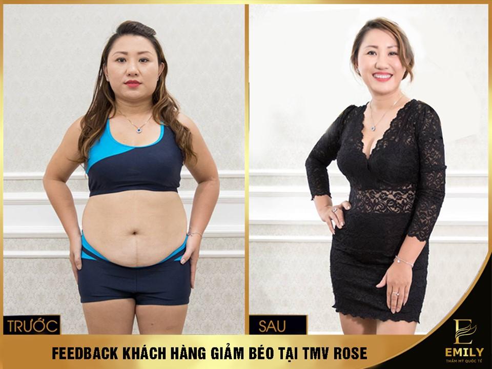 Phương pháp giảm béo hiệu quả tại thẩm mỹ viện Rose Cầu Giấy - Ảnh 3