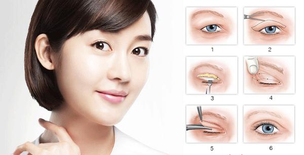 Cắt mắt 2 mí Hàn Quốc: Mắt đẹp rạng ngời, ánh nhìn duyên dáng - Ảnh 2