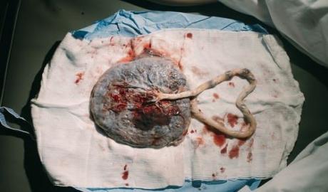 saving placenta