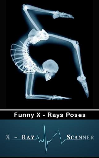 X光掃描儀 惡作劇