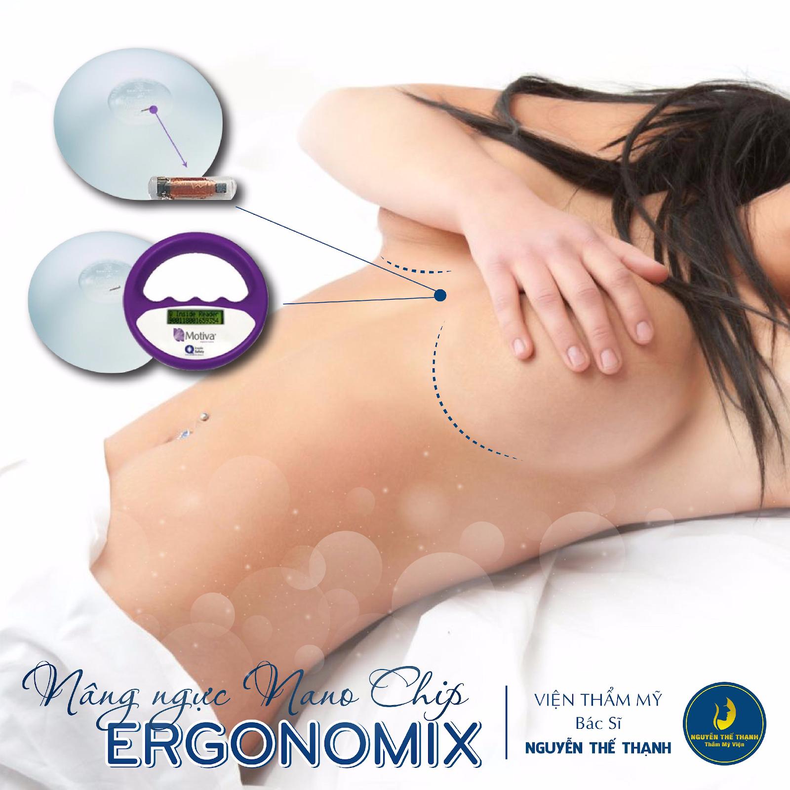 Nâng ngực Nano chip Ergonomix - Giải pháp cho vòng 1 căng tràn  - Ảnh 1