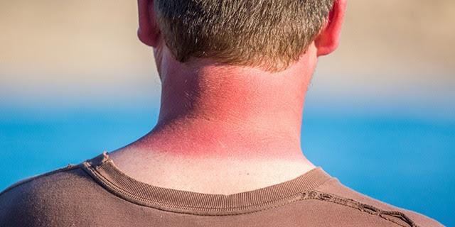 qué hacer quemadura solar