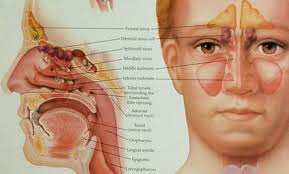 Pengobatan Herbal Sinusitis