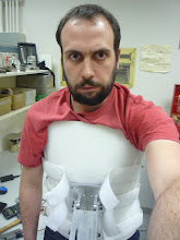 Photo: Me locked into the body cast for the first time.