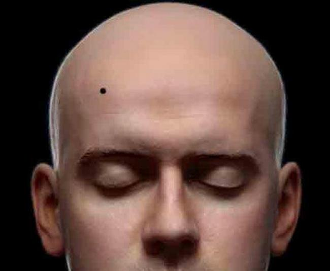 #2) Mole on the right part of the forehead