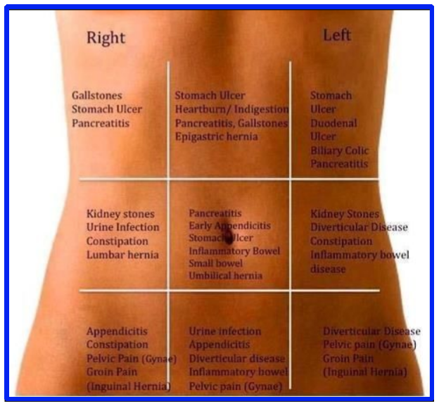 IBS pain locations