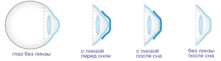 C:\Users\User\Documents\Виста\orto.png