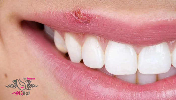 رابطه دهانی پرخطر