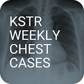 KSTR Weekly Chest Cases