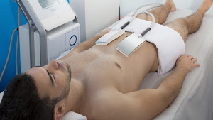 cryolipolyse pour homme