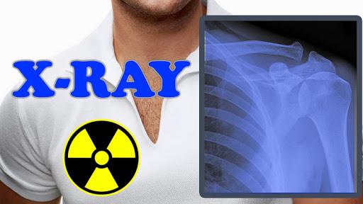 X-Ray Filter Photo