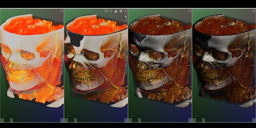 DroidRender - 3D DICOM viewer 3.9.2 screenshots 15