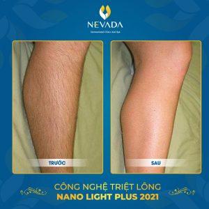 công nghệ triệt lông Nano Light Plus