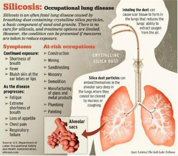 health-silicosis_graphic-bimari