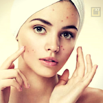 Skin and Face Care - acne, fairness, wrinkles 2.1.1