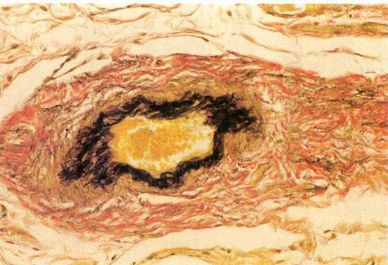 Photomicrograph of blood vessels within the endometrium; van Gieson-elastin stain, x 100: Arteriol showing a moderate destructive panelastosis.