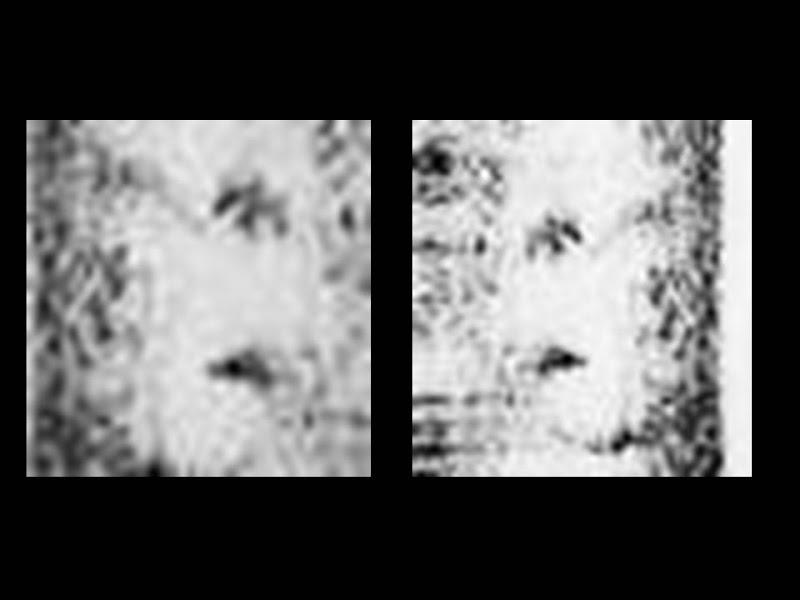Photo: 2 views of the profile face