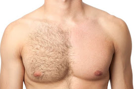 A man's chest with half of his chest hair having been waxed off