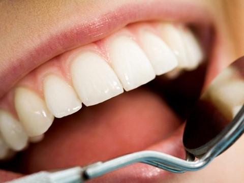 Cạo vôi răng có hết hôi miệng không - Nha khoa Quốc tế Bally