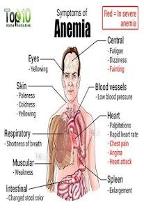 Anemia - náhled