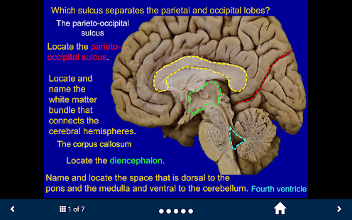 Neuroanatomy Lite - SecondLook- screenshot thumbnail