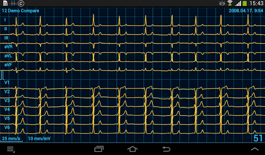 Cardiax Mobile ECG- screenshot thumbnail