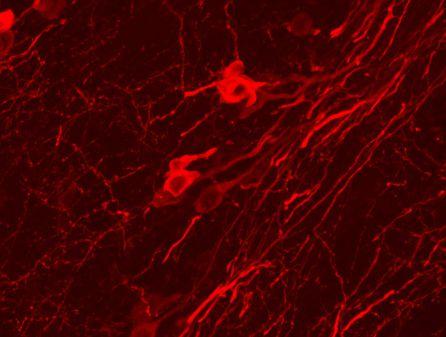 Microfotografía de neuronas de la sustancia negra, que liberan dopamina