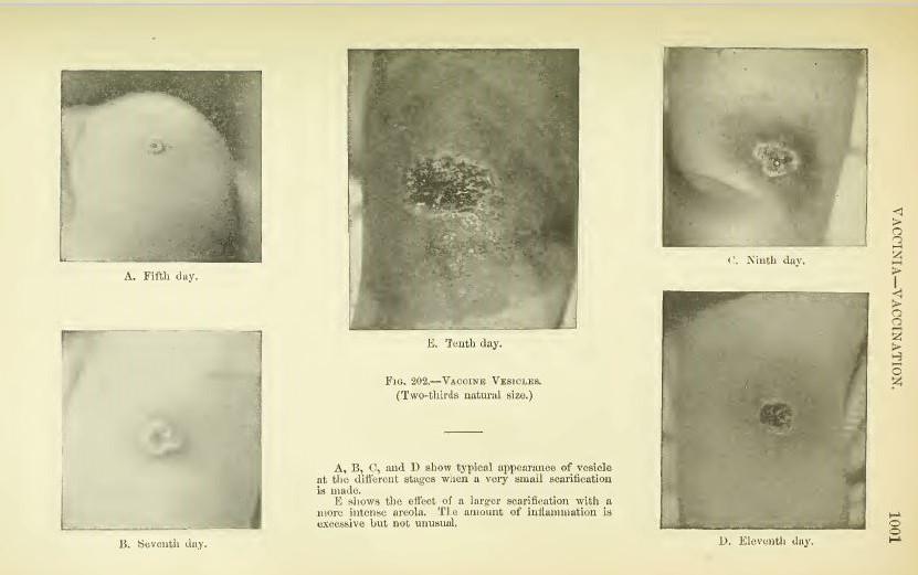 L.埃米特霍尔特,婴儿和儿童的疾病。第5版。纽约:D.阿普尔顿和公司,1910。