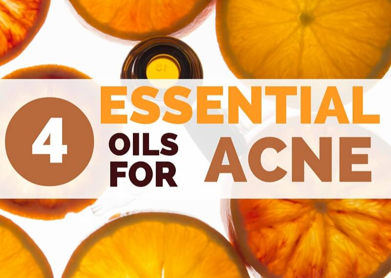 4 Essential Oils for Acne